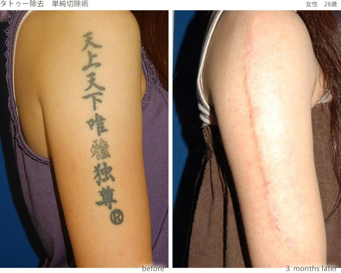 切除術が適応となる症例2