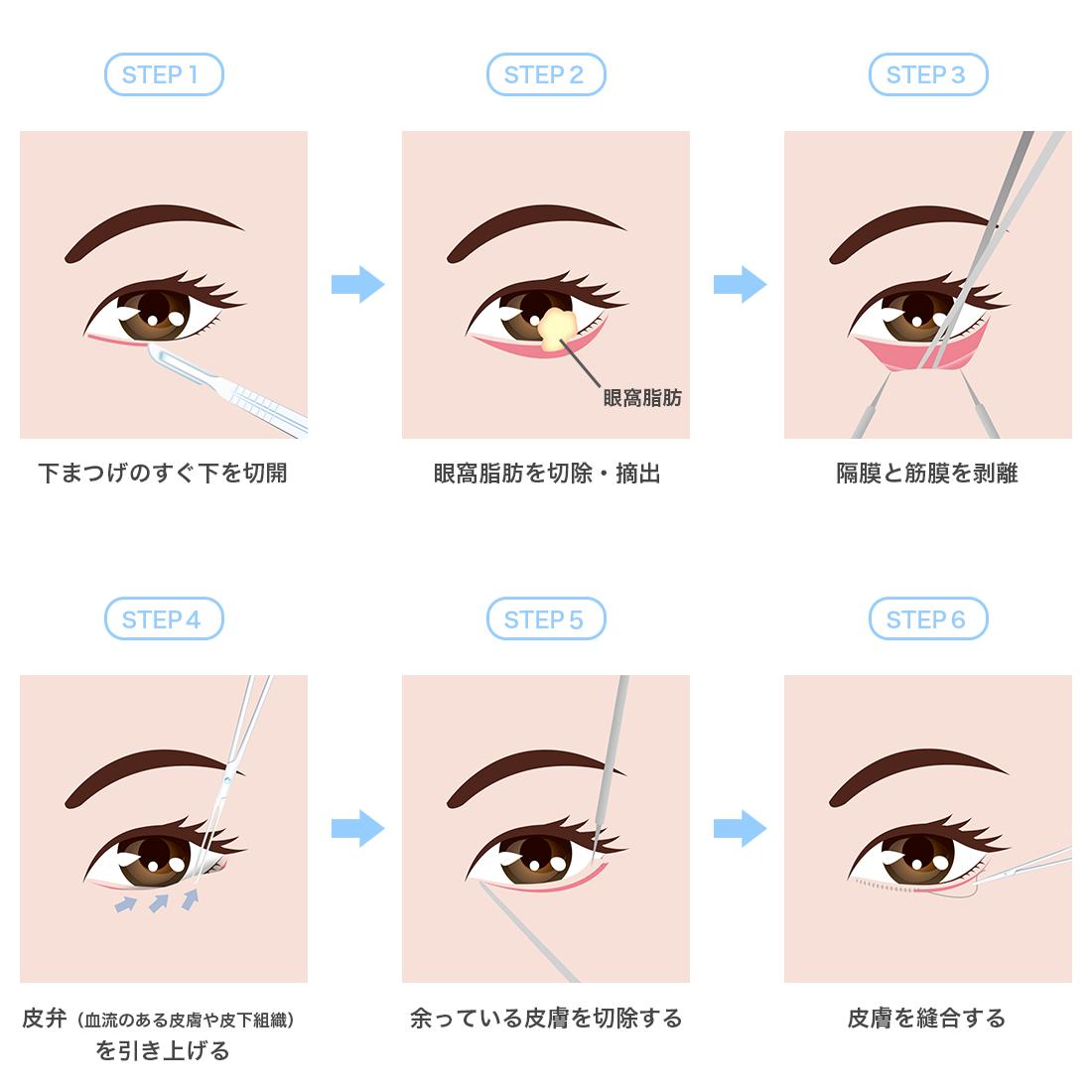 下眼瞼脱脂術・除皺術