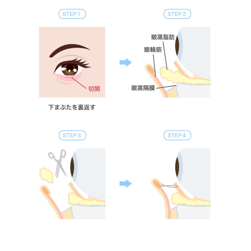 下眼瞼脱脂術