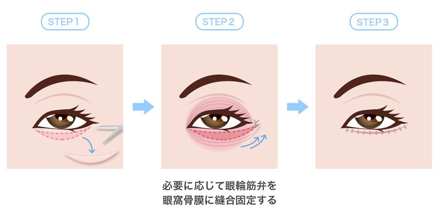 下眼瞼除皺術イラスト