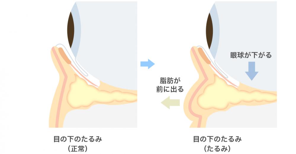 目の下の脂肪