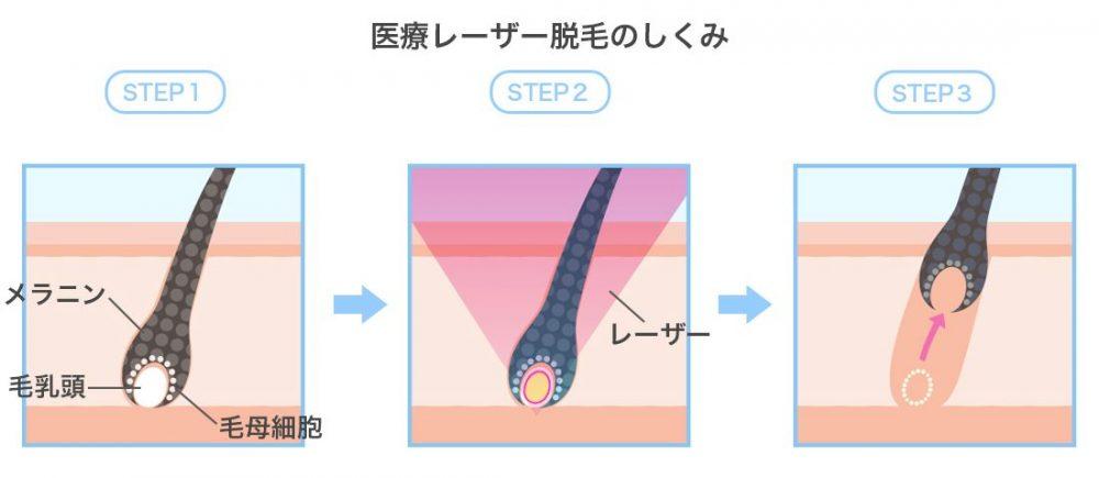 医療レーザー脱毛の仕組み