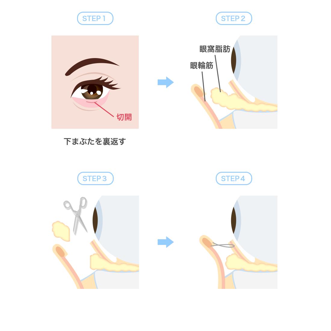 下眼瞼脱脂術経結膜法