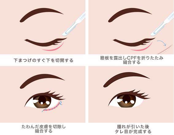 下眼瞼下制術