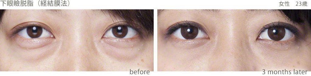 下眼瞼脂肪(経結膜法)